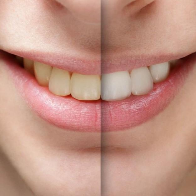 Resultado de imagen para salud dental vapear